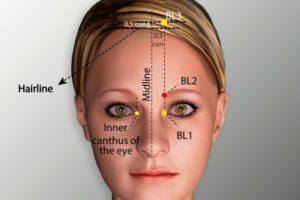 BL 2-Zanzhu acupoint