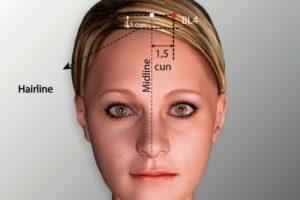 BL 5-Wuchu acupoint
