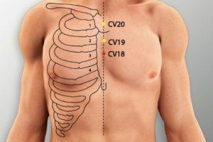 CV 18-Yutang acupoint
