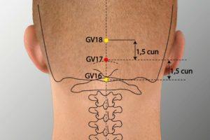 GV 17-Naohu acupoint