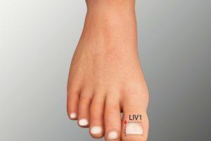 LIV 1-Dadun acupoint