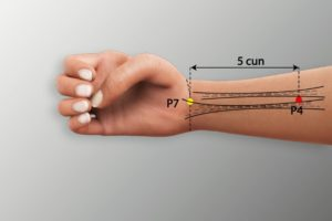 P 4-Ximen acupoint