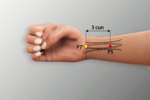 P 5-Jianshi acupoint