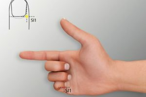 SI 1-Shaoze acupoint
