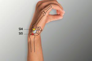 SI 5 -Yanggu acupoint