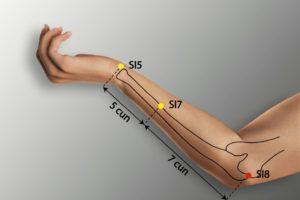 SI 8-Xiaohai acupoint