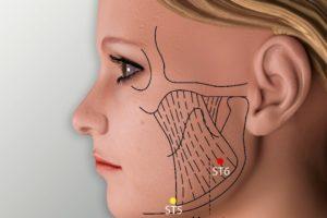 ST 6-Jiache acupoint