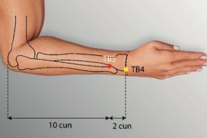 TB 5-Waiguan acupoint